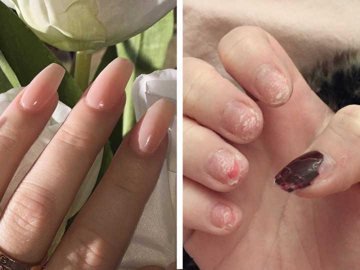 Garota compartilha a realidade sobre usar unhas de acrílico