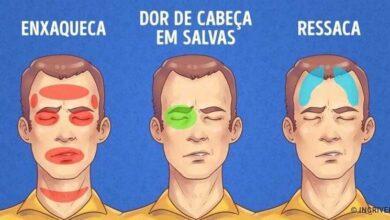 Foto de Como aliviar rapidamente 5 tipos de dores de cabeça