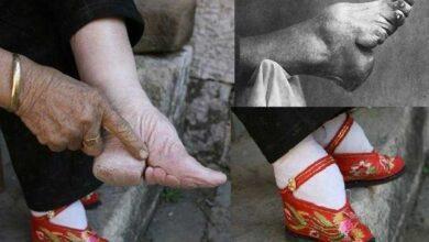 Photo of Pés-de-lótus: Confira fotos chocantes da antiga tradição chinesa