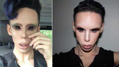 """Foto de Rapaz gasta R$ 152 mil em cirurgias para se tornar um """"alienígena assexual"""""""