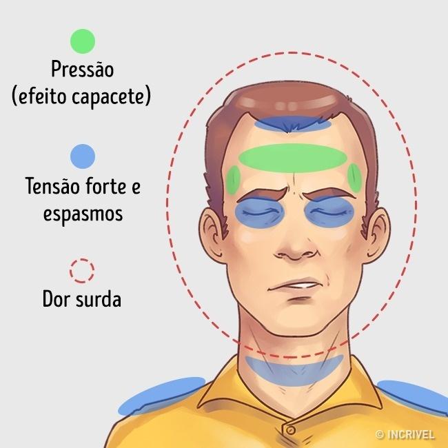 aprende como aliviar rapidamente estes 5 tipos de dores de cabeca Como aliviar rapidamente 5 tipos de dores de cabeça
