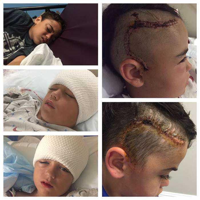 Garoto de 10 anos estava agindo estranho após ter brincado na rua. 2 dias depois, o que a mãe viu na cabeça dele a deixou desesperada!