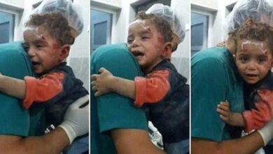 Foto de Garoto sírio ferido encontra conforto nos braços do enfermeiro