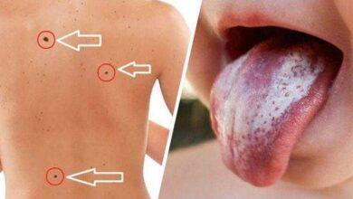 Foto de 12 sinais de um câncer maligno que podem ser sutis