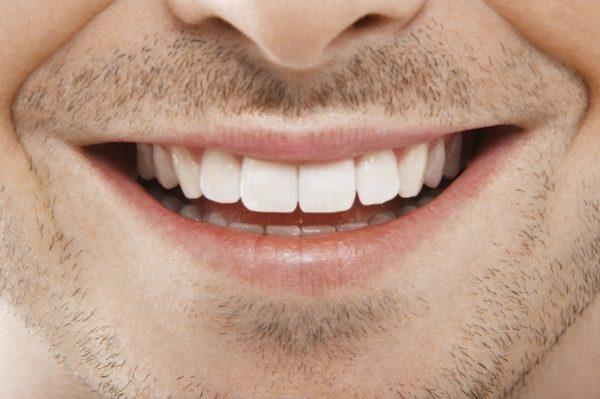 1495159730 325 elimine o tartaro e clareie seus dentes usando apenas esse remedio caseiro Elimine o tártaro e clareie seus dentes usando apenas esse remédio caseiro