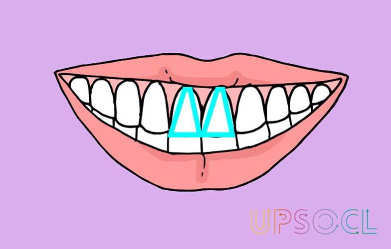 formato_dentes_4