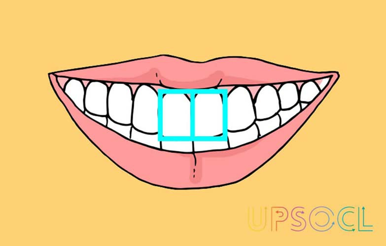 formato_dentes_5