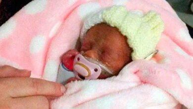 Photo of Médicos presenciam milagre ao ver recém-nascida de apenas 450 gramas respirar sem ajuda de aparelhos