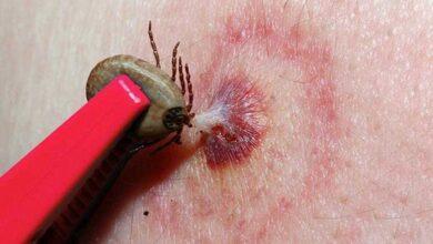 Foto de Cientistas alertam para um novo vírus letal transmitido por carrapato
