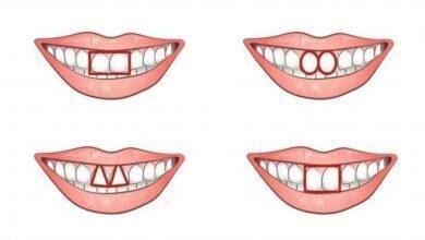 O formato dos dentes da frente revela muito sobre a sua personalidade