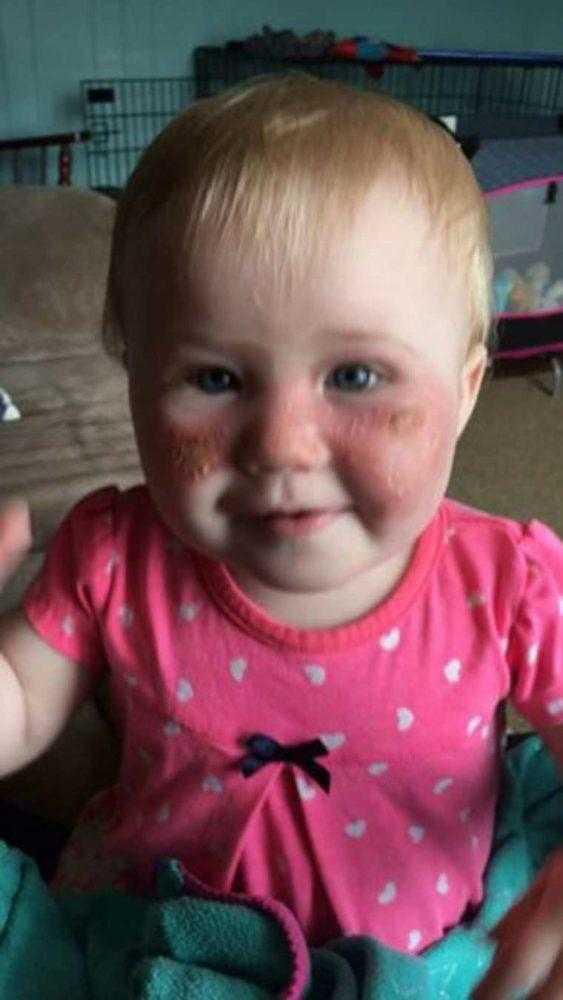 Bebê sofre queimadura de 2º grau em sua face por algo toda a gente utiliza no verão!
