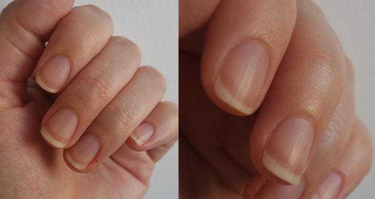 Como remover as cutículas sem alicate em 5 minutos
