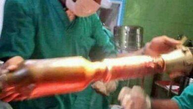 Médicos retiram míssil que estava preso nas nádegas de paciente