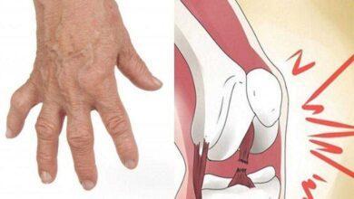 Por que não devemos estalar os dedos