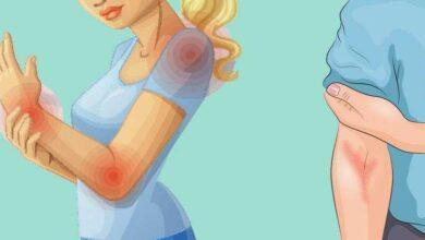 Foto de 10 Sinais de que seu intestino está sobrecarregado de toxinas