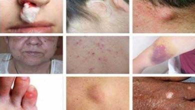 15 Sinais perigosos de câncer que as pessoas ignoram