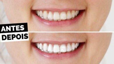 5 Maneiras caseiras para você branquear seus dentes