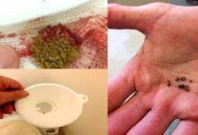 Foto de Tratamento para tirar pedras da vesícula e do fígado