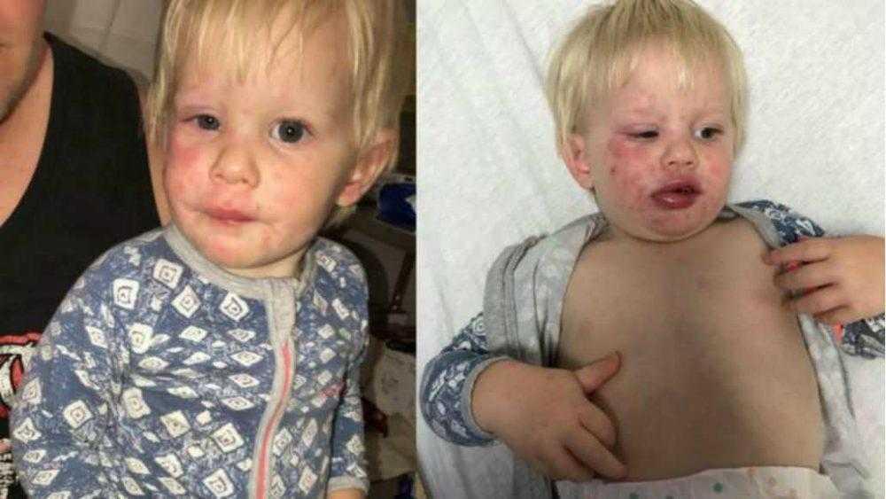 Bebê tem grave reação alérgica após usar roupas novas sem lavar