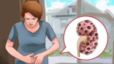 Foto de Os 10 primeiros sintomas que indicam que seus rins estão com problemas