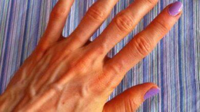 Foto de Saiba por que algumas pessoas têm as veias das mãos marcadas