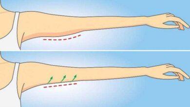 Aprenda maneiras simples de reduzir a gordura do braço