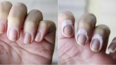 Foto de Como pintar as unhas sem borrar o esmalte