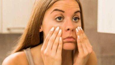 Aprenda como eliminar as olheiras naturalmente