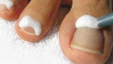 Foto de Essa receita elimina rapidamente os fungos dos pés e das mãos
