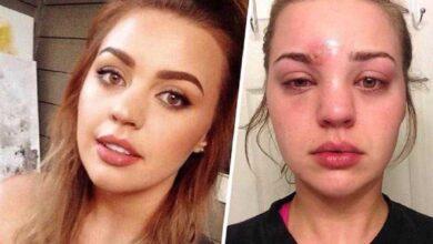 Foto de Mulher aperta espinha e descobre que tem infecção muito mais grave no rosto