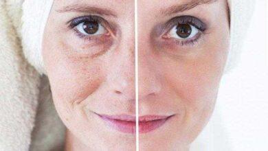 Foto de Tratamentos caseiros para as manchas na pele