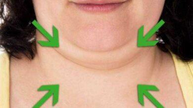 5 maneiras de eliminar a gordura da papada ou queixo duplo