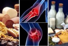 Foto de Não coma estes 9 alimentos se você sofre com dores nas articulações