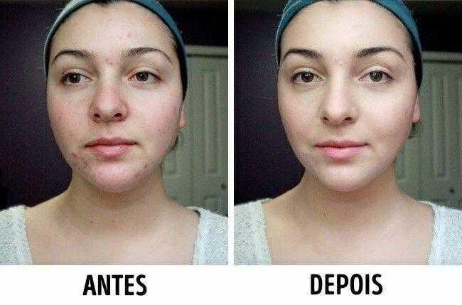 Este soro vitaminado vai nutrir sua pele e fará você ficar alguns anos mais jovem
