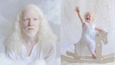 12 fotos que mostram a beleza cativante de pessoas albinas 01 d
