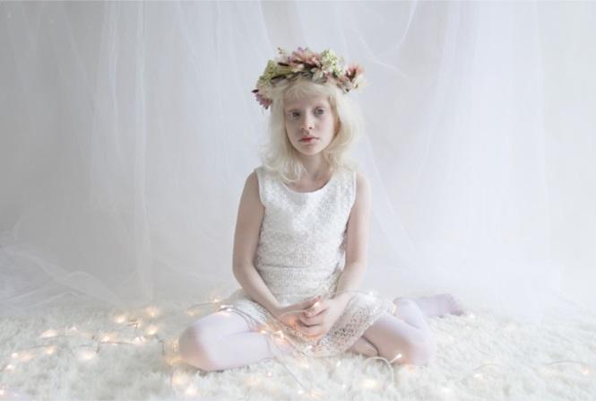 12 fotos que mostram a beleza cativante de pessoas albinas