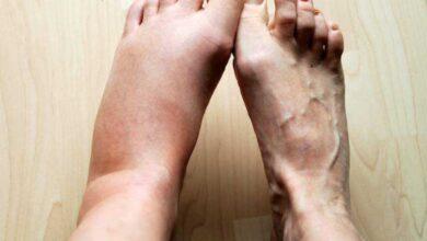 4 Sinais nos seus pés podem indicar se você corre o risco de um infarto ou AVC. Saiba identificar
