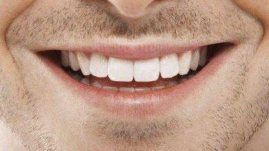 Foto de Elimine o tártaro e clareie seus dentes usando apenas esse remédio caseiro