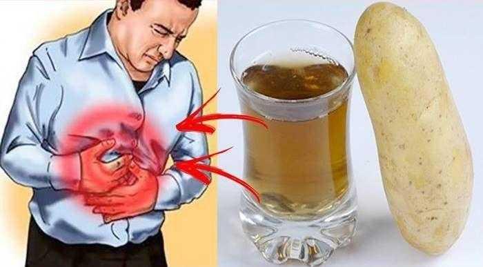 Remédios caseiros para gastrite azia e refluxo 1