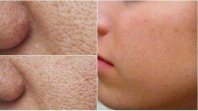 Como fazer os poros desaparecerem com apenas alguns ingredientes