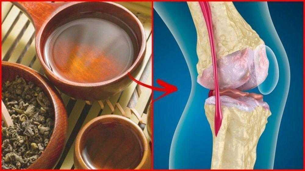 Receitas de chás para tratar dor nos ossos FF
