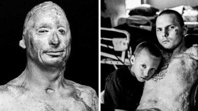 Fotos chocantes mostra como vivem os veteranos depois das guerras s