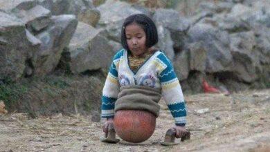 """Foto de Se você acha que sua vida é ruim, veja esta história inspiradora sobre a garota """"Basquete"""""""