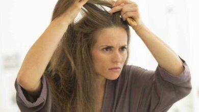 Foto de Óleo de coco previne a queda de cabelos e reduz os fios brancos