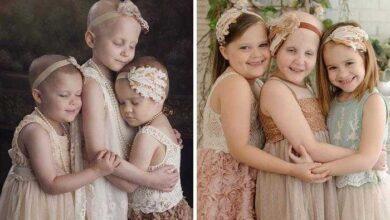Photo of 10 antes e depois de pessoas que venceram o câncer e recomeçaram a vida