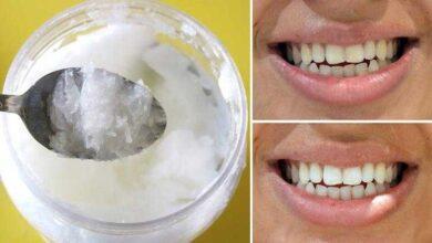 Como clarear os dentes de maneira rápida com óleo de coco Q