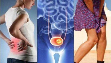 7 sinais de câncer de bexiga aos quais devemos ficar atentos 1q