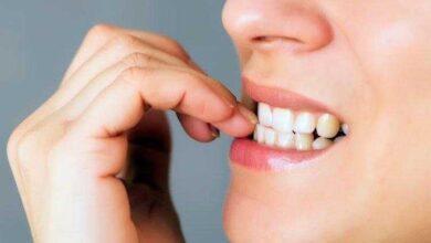 Photo of Dicas para parar de roer as unhas