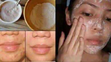 Foto de Máscara facial para tratar acne e cicatrizes