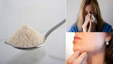 Foto de 7 Sinais que você está comendo muito açúcar